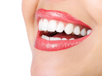 A smiling mouth with Clear Braces / invisalign on.