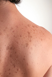 skin discoloration and freckles, skin treatments