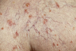 An example of skin with spider veins