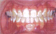 Improperly cleaned teeth after braces have been removed