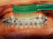 Orthodontic Tooth Brushing