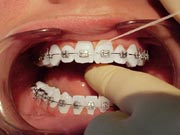 An example of flossing between teeth with braces