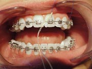 An example of flossing around braces brackets
