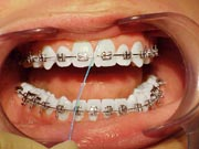 An example of flossing around the gum with braces