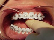 An second example of flossing between teeth with braces