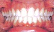 A case example of properly cleaned teeth after braces have been removed