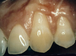 gum recession can expose the roots of teeth