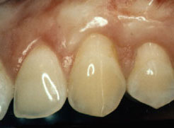 A corrected gum line recession after gum grafting