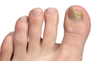 A foot showing the toes with the big toe chipped and discolored