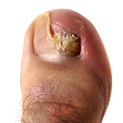 A close up of the big toe with the nail broken and discolored