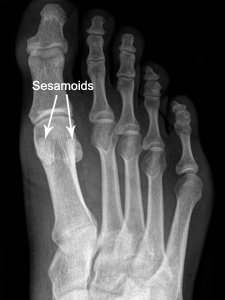 An x-ray of the foot showing a sesamoiditis on the ball of the foot