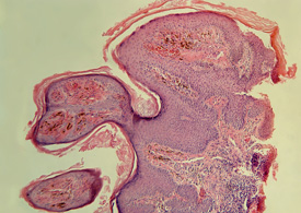 An example of an HPV cell that causes warts