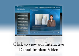 Dental Implant Presentation