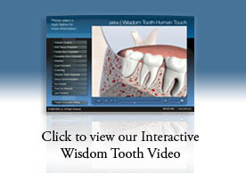 Wisdom Tooth Video